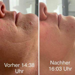 Dr. Juchheim vorher-nacher 7