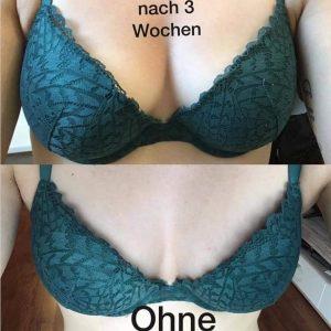 Dr. Juchheim vorher-nacher 8